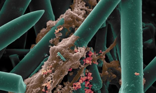 Esponjas marinhas são usadas para enxertos ósseos